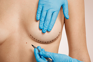 Woman being prepared for breast augmentation plastic surgery