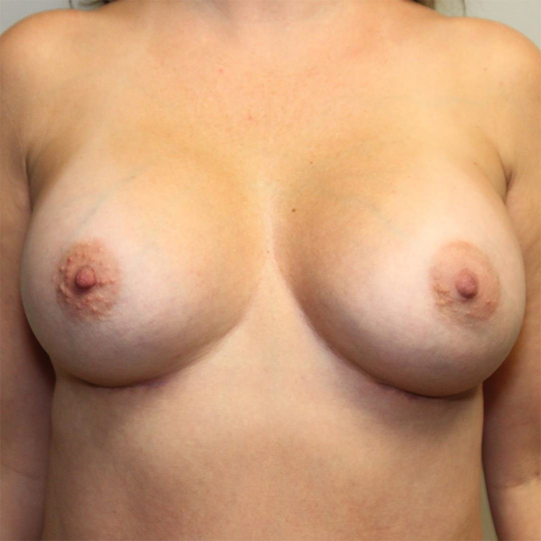27 year old after Breast Augmentation front facing image